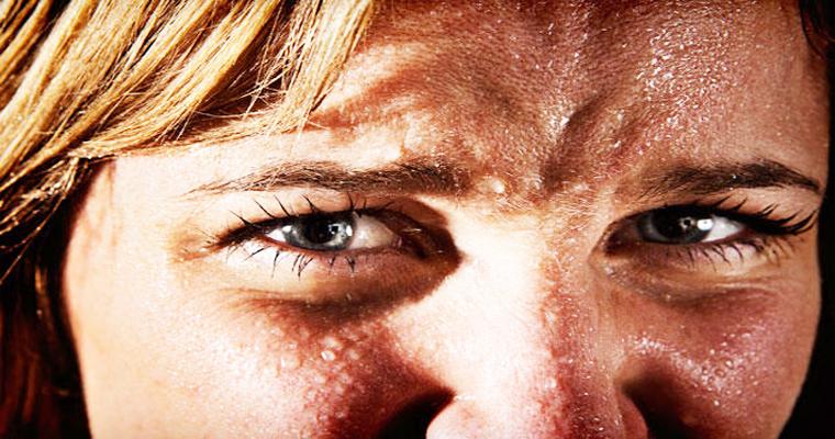 Excessive Sweat